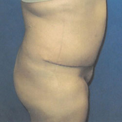 after tummy tuck procedure profile