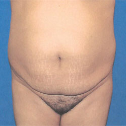 before tummy tuck procedure