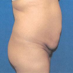 before tummy tuck procedure profile